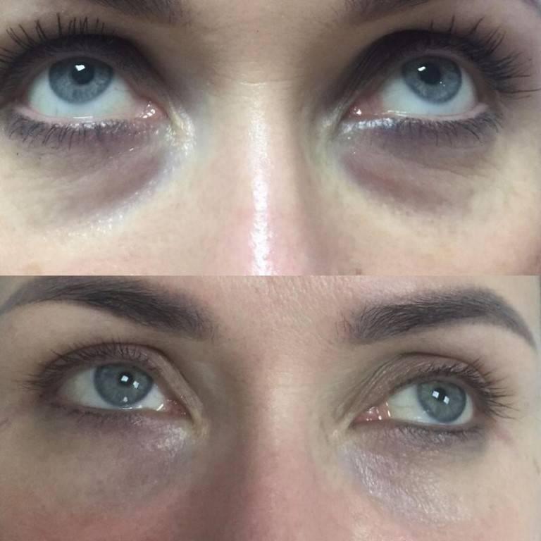препараты от синяков под глазами