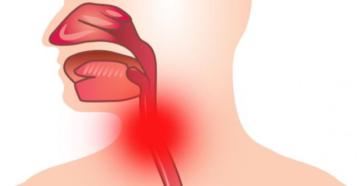 Гонорейный (гонококковый) фарингит: причины, симптомы и лечение