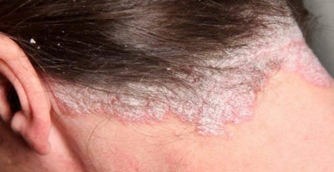 Средства от дерматита на голове