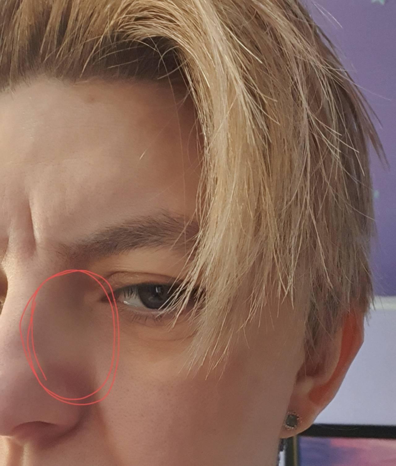 болит крыло носа при нажатии