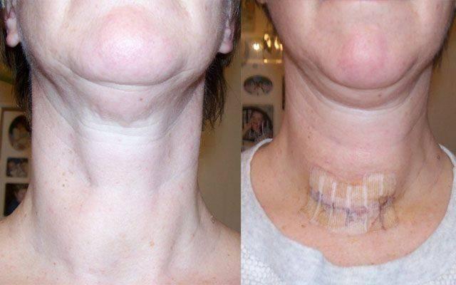 удалена щитовидная железа полностью положена инвалидность