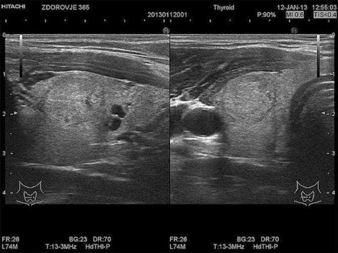 Расширенный фолликул в левой доле щитовидной железы
