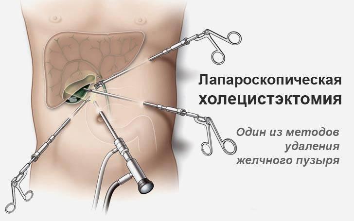лапароскопия желчного пузыря диета после операции