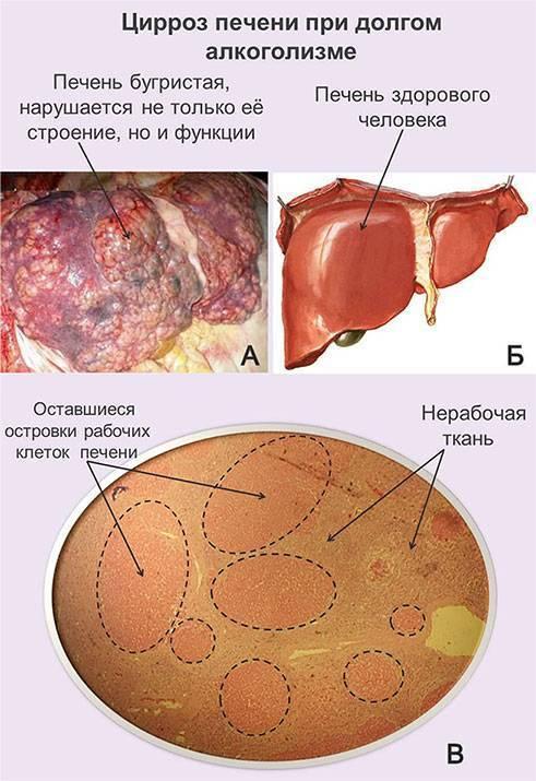 Сколько живут с токсическим циррозом печени, симптомы и лечение