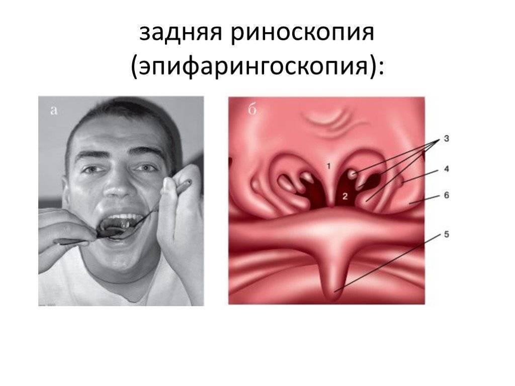 Эндоскопическая полисинусотомия
