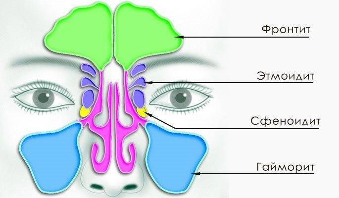 Гайморит: признаки и симптомы у взрослых, как проявляется болезнь