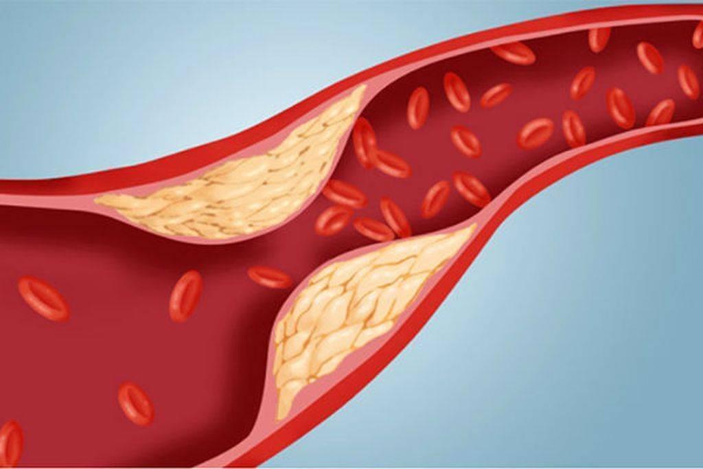 Холестериновые бляшки в сосудах — симптомы и лечение, препараты