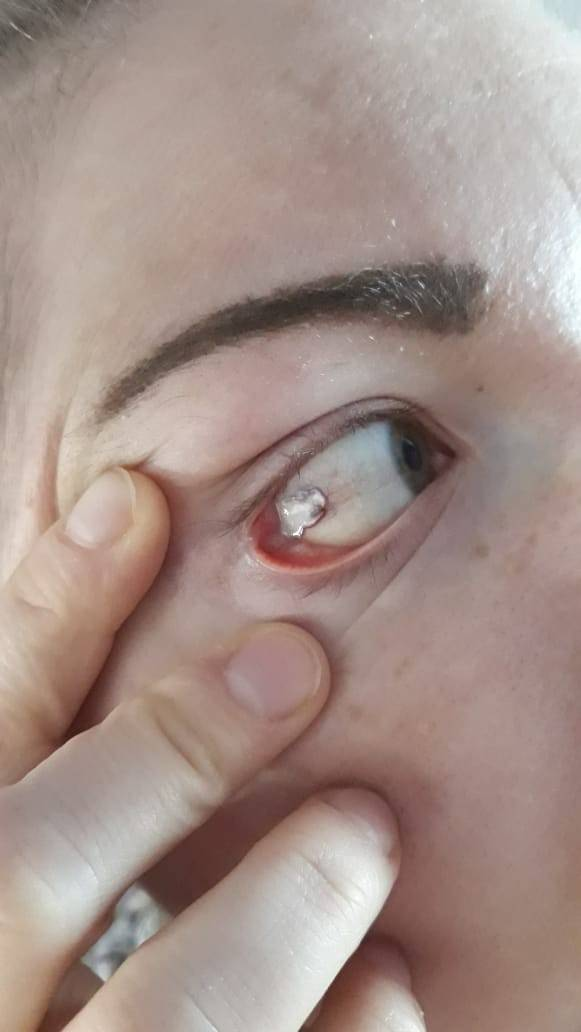 Лопнул сосуд в глазу у ребенка — причины и профилактика состояния