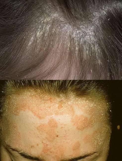 демодекоз кожи головы