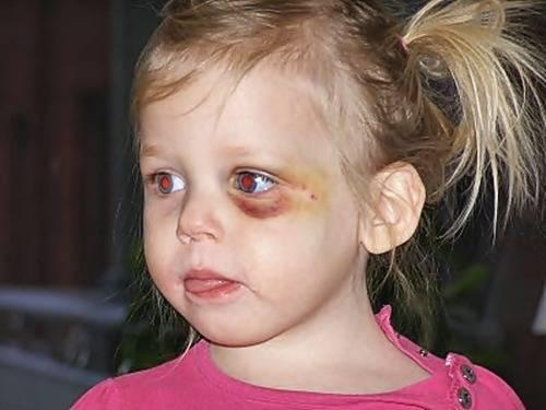 темные круги под глазами у ребенка причины
