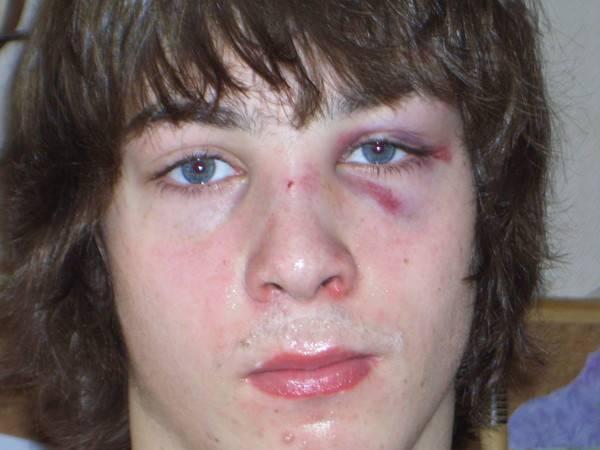Ушиб переносицы у ребенка. снятие отека после удара