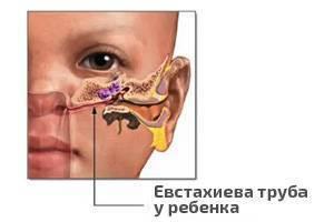 Тубоотит симптомы и лечение. симптомы тубоотита