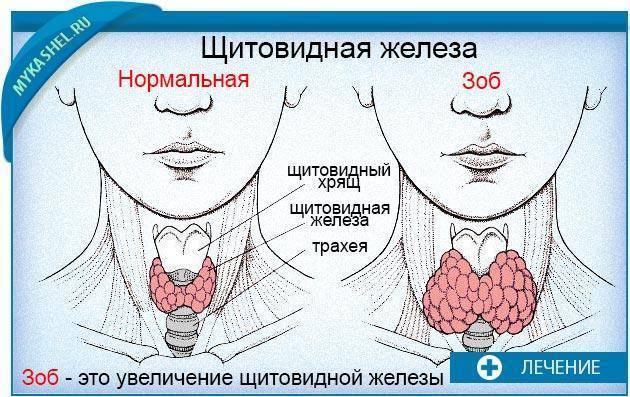 кашель при болезни щитовидной железы