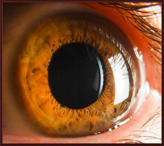 Роговица глаза: заболевания, симптомы, лечение. воспаление роговицы глаза