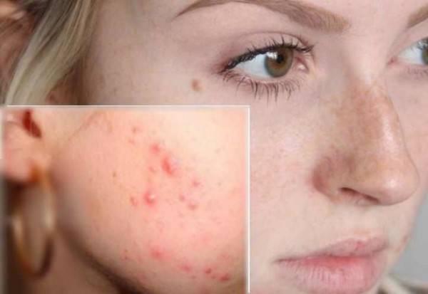 Симптомы и лечение подкожного клеща на лице