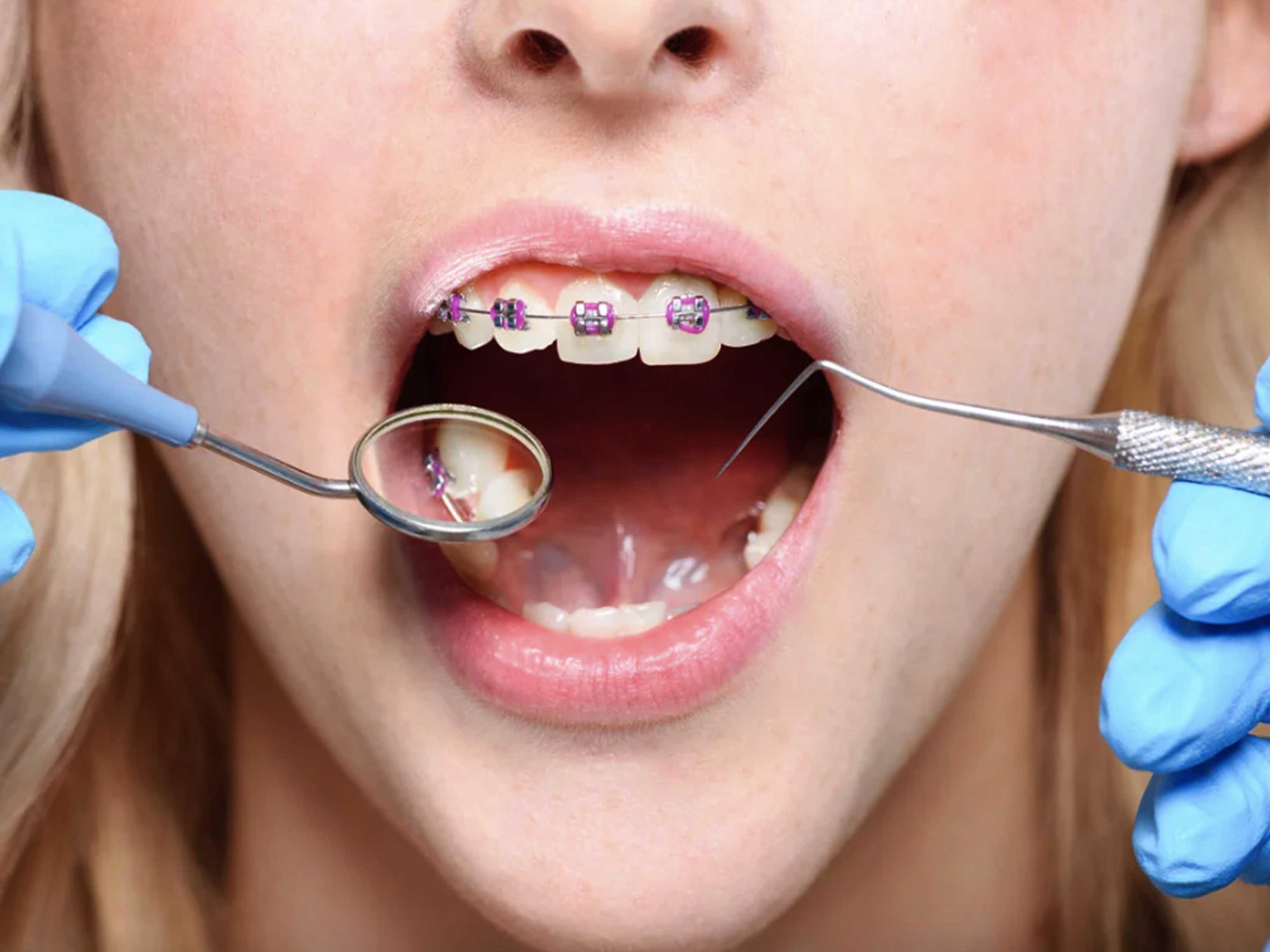 Болят зубы от брекетов.