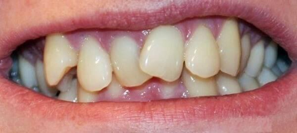 Кривые зубы у детей: что делать