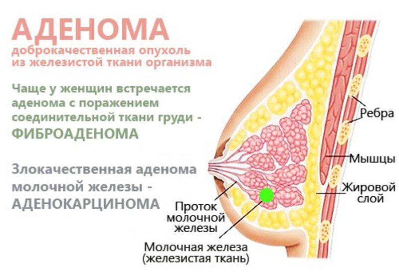 Диффузный фам с преобладанием аденоза
