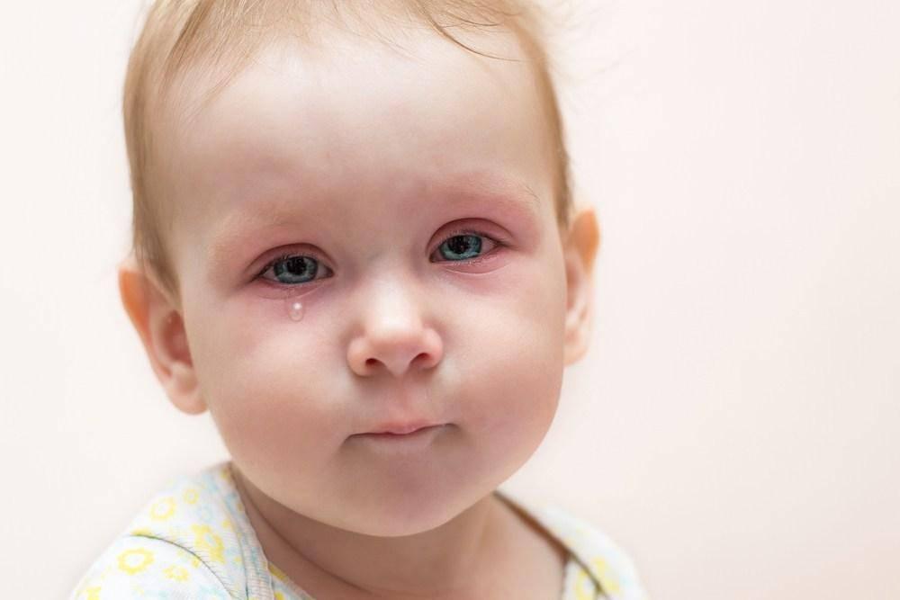 Лечение заболевания глаз у детей