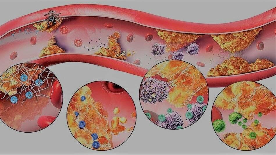 Снижение холестерина без статинов: основные методы и средства