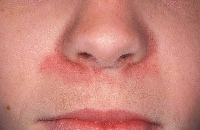сухость и кровяные корки в носу