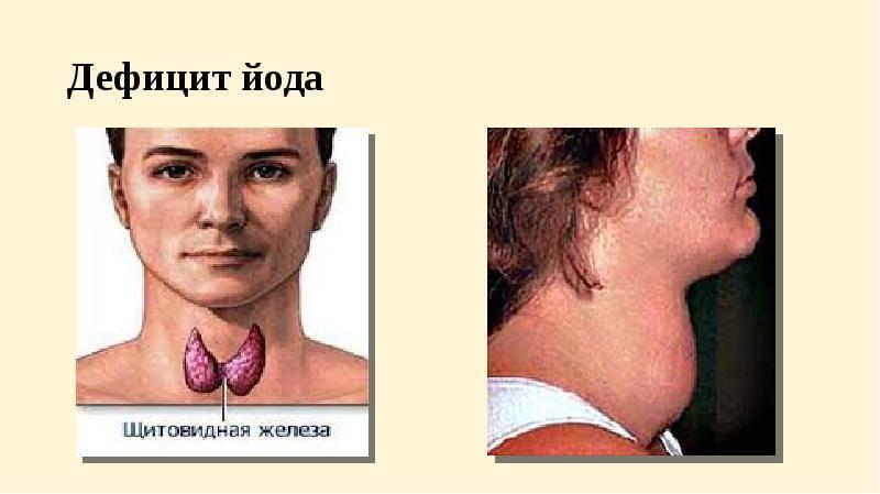 Что делать при снижении функций щитовидки: восстанавливаем работоспособность железы