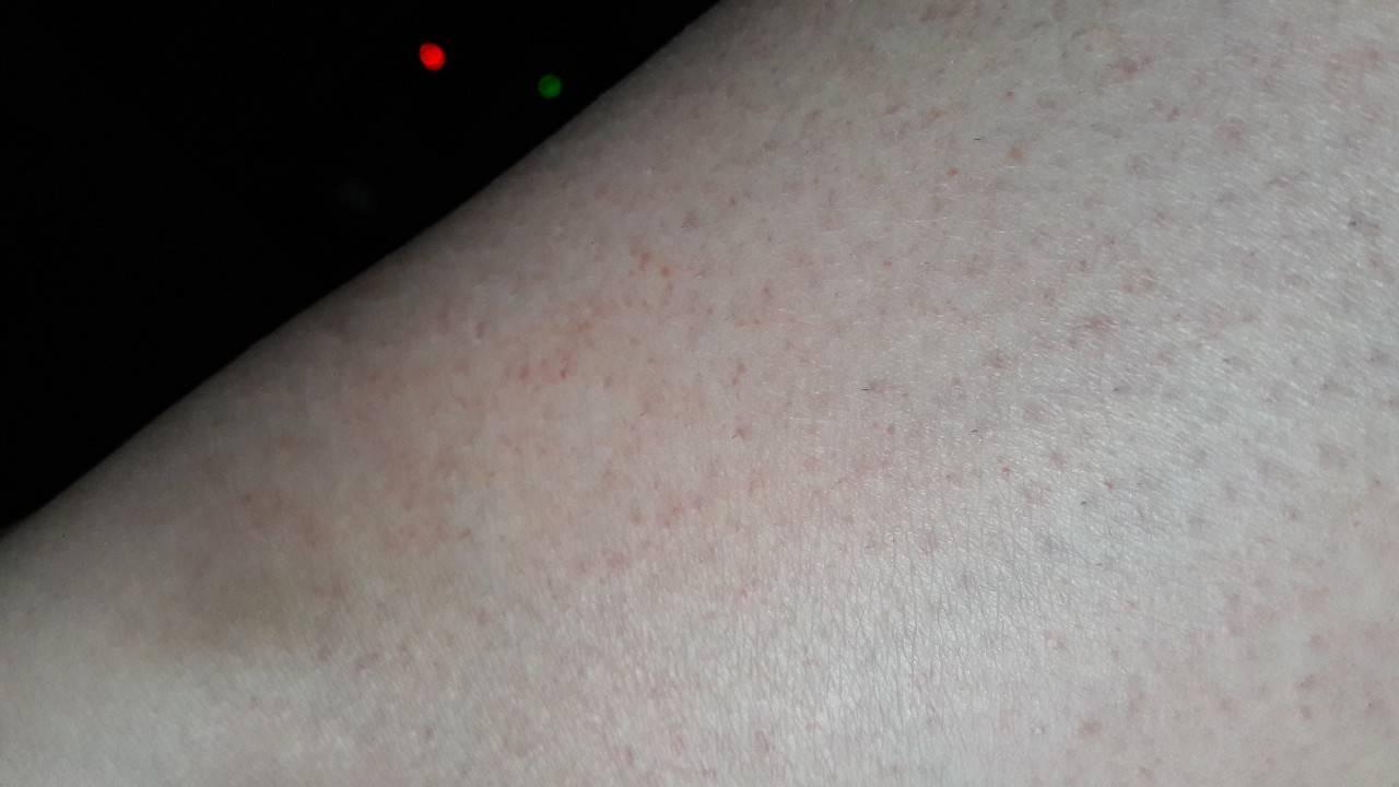 дерматит кожи на ногах