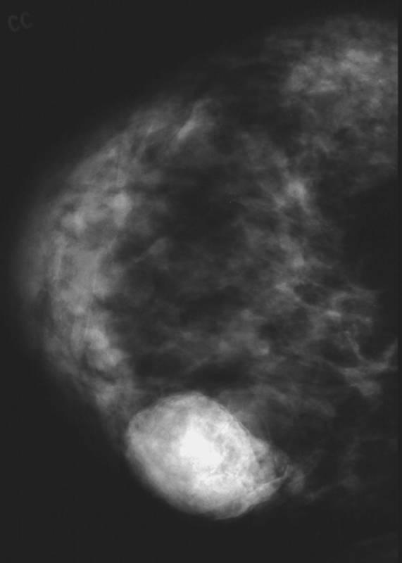 Аденома молочной железы: причини, симптомы, лечение