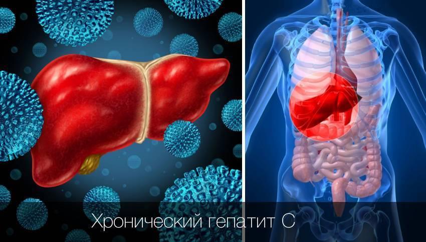 лечение хронического гепатита с