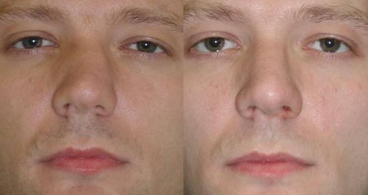 Перелом носа – симптомы, виды перелома костей и хряща носа, лечение и последствия