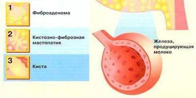 Фиброаденома молочной железы при беременности:  популярные вопросы про беременность и ответы на них