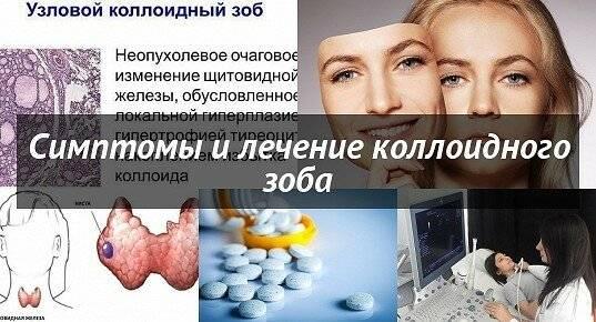 Симптомы и лечение коллоидного зоба