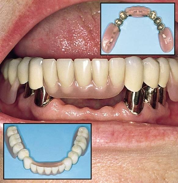 Бюгельные зубные протезы и их виды фиксации, уход и стоимость