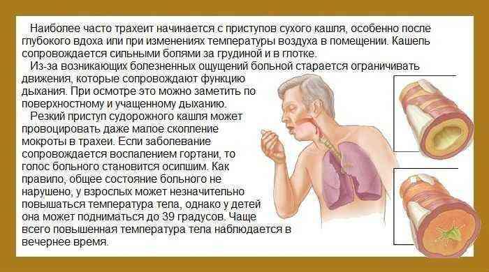 Заразно ли заболевание трахеит?