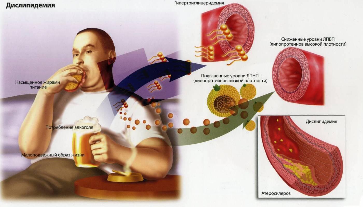 Какие нормы уровня холестерина при диабете