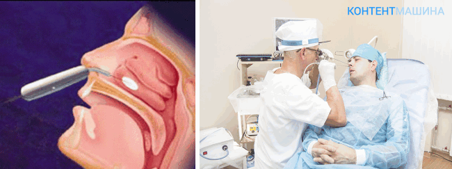 Особенности лазерного лечения вазомоторного ринита