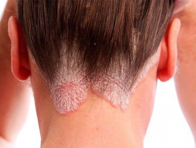 псориаз головы лечение народными средствами бабушка