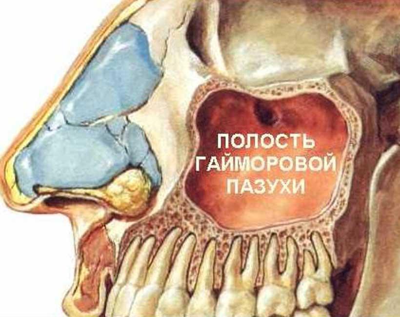 После гайморита болит зуб