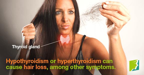 Щитовидная железа и облысение: причина и следствие