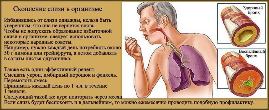 Слизь в горле: причины и лечение, если постоянно сглатываю она не уходит