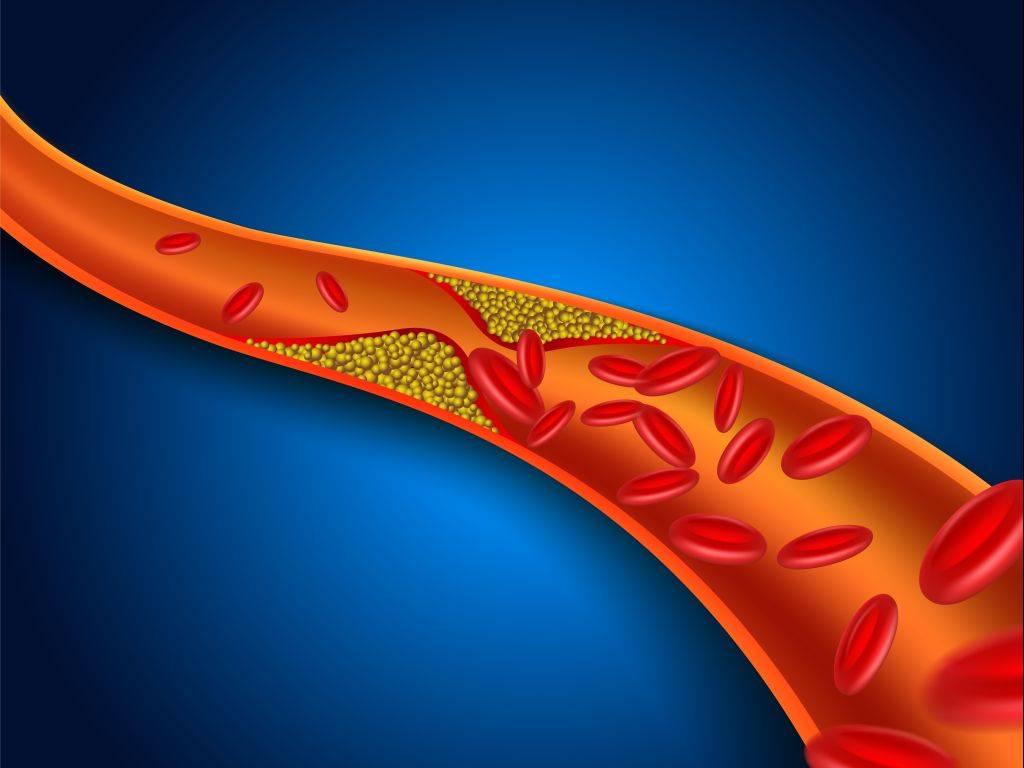 атеросклероз стадии развития