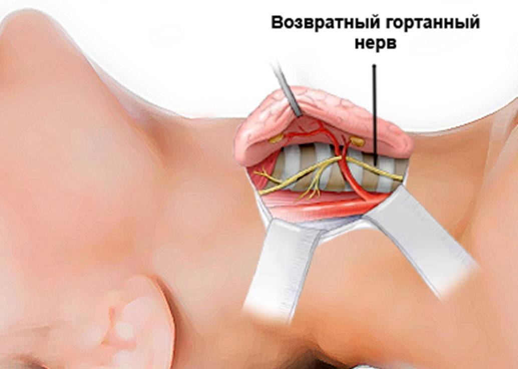 Операция по удалению щитовидной железы: показания, проведение, реабилитация