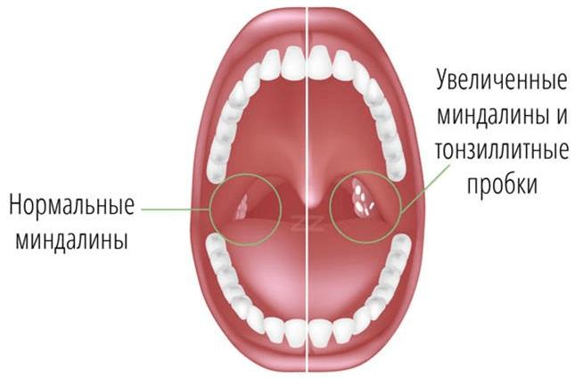 что такое тонзиллит и как его лечить