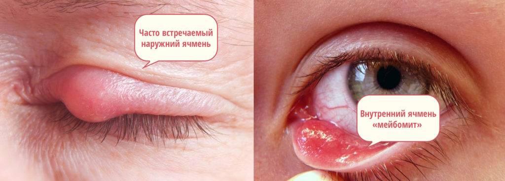 Как предотвратить появление ячменя на глазу – простая профилактика