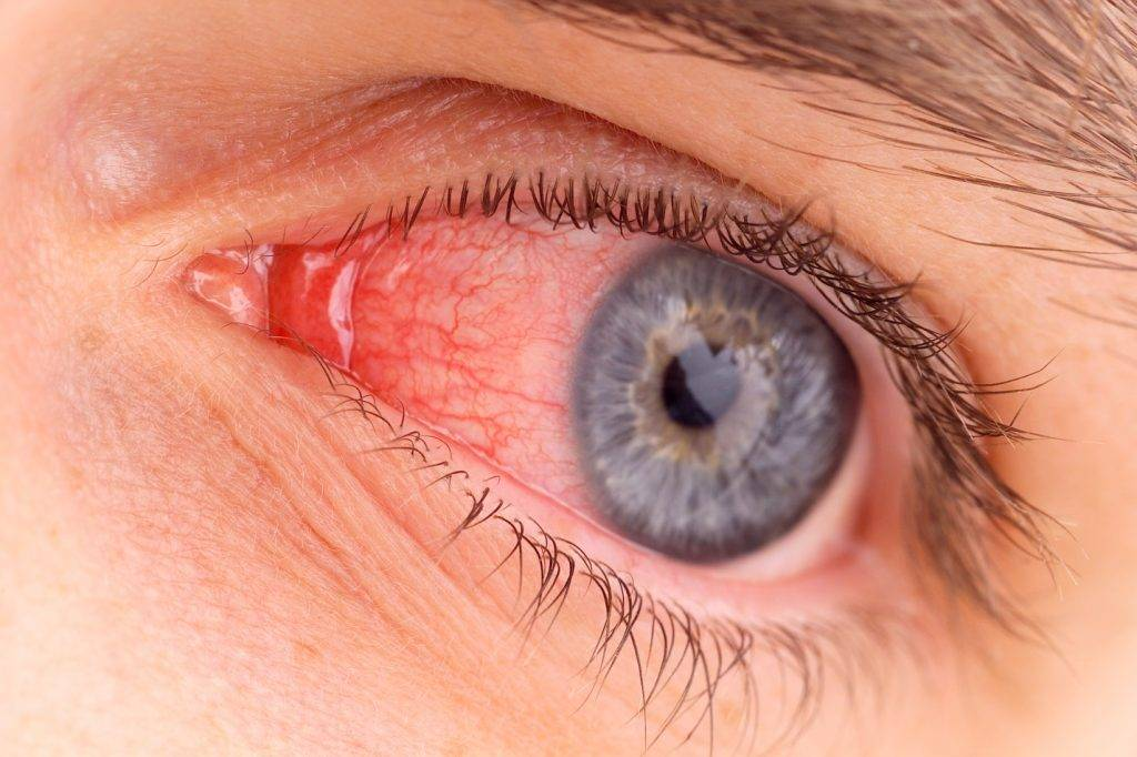Что делать, если увас лопнул сосуд в глазу? капли для устранения симптома