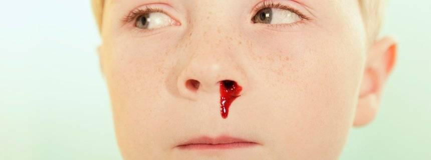 почему запекается кровь в носу