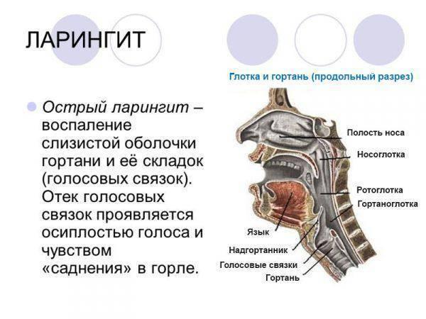 Катаральный ларингит: симптомы и лечение