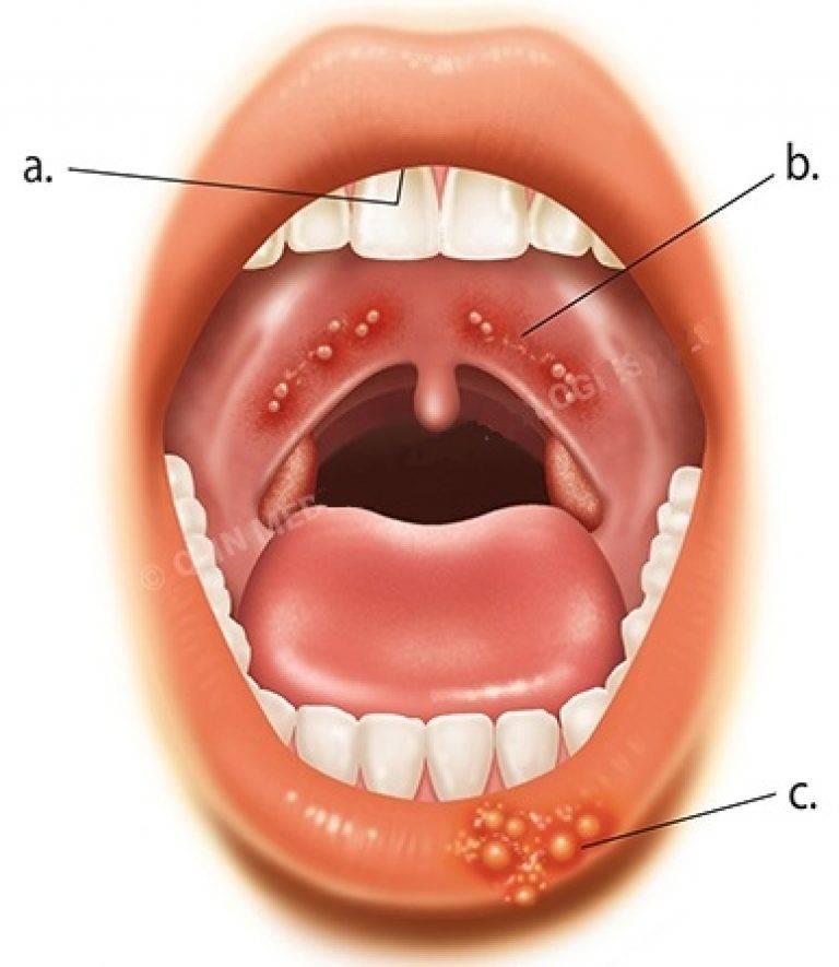 как лечить красное горло у взрослого