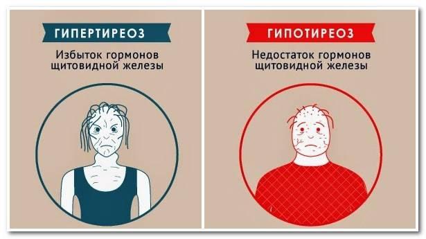 гормон щитовидной железы ттг выше нормы