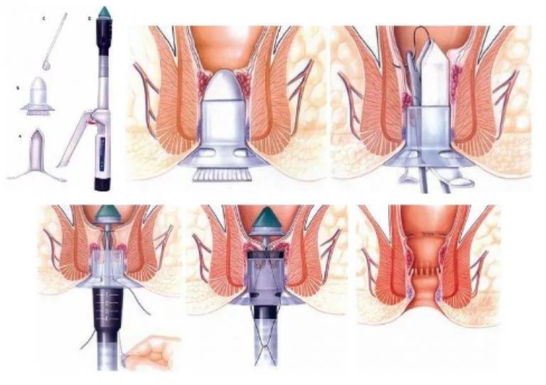 Какие виды операций по удалению геморроя существуют и сколько стоят хирургические вмешательства?